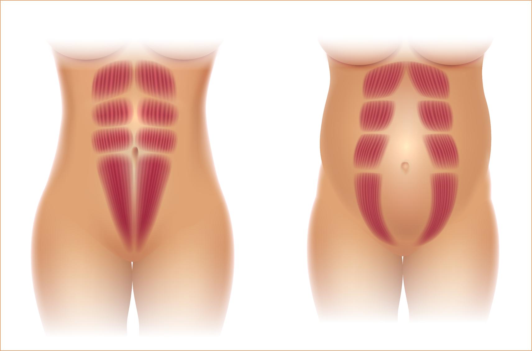 ne-na-diastazata-diastasis-recti